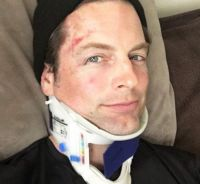 Michael Muhney (ex Adam Newman dans les Feux de l'Amour) blessé lors d'une course cycliste